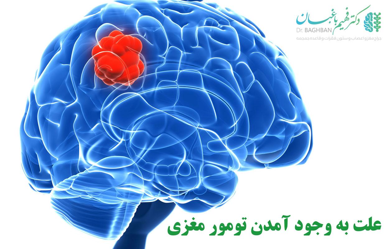 علت به وجود آمدن تومور مغزی
