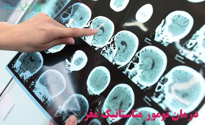 درمان تومور متاستاتیک مغز