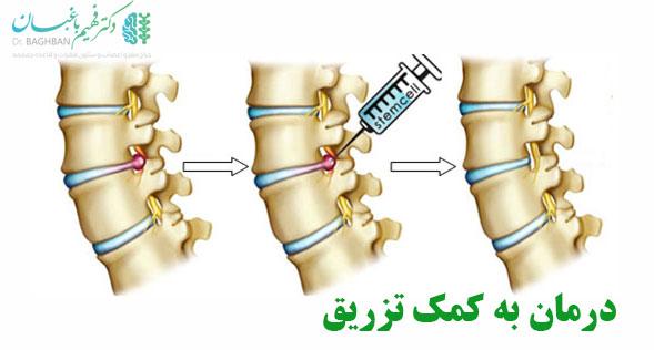 درمان دیسک کمر به کمک تزریق