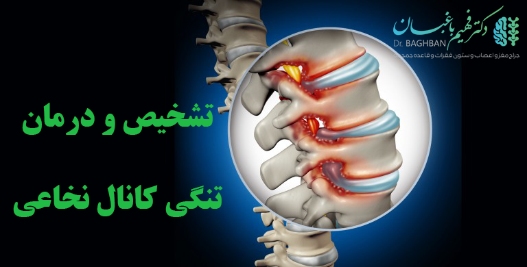 تشخیص و درمان تنگی کانال نخاعی