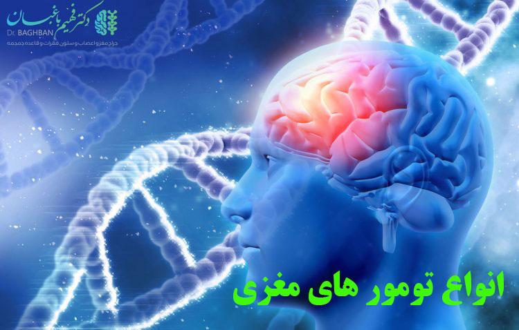 انواع تومور مغزی