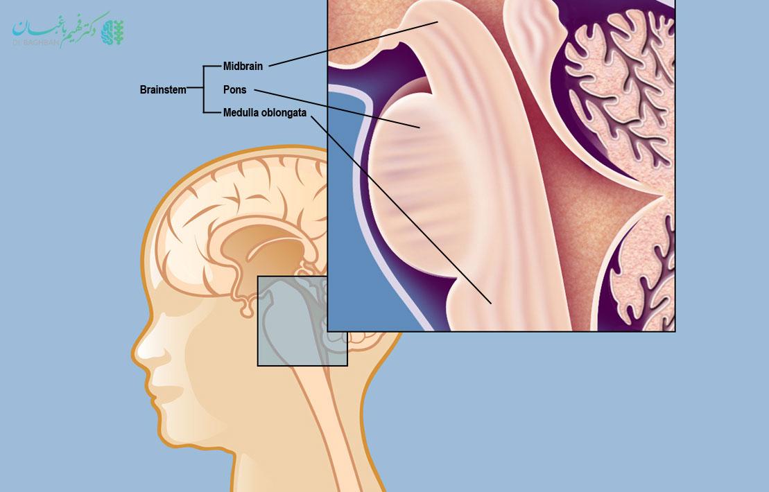 گلیومای ساقه مغز