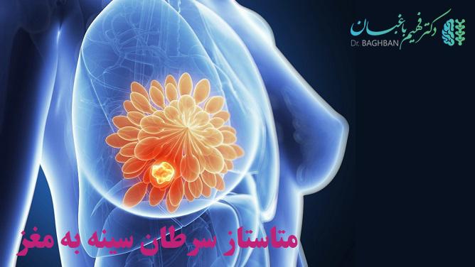 متاستاز سرطان سینه به مغز