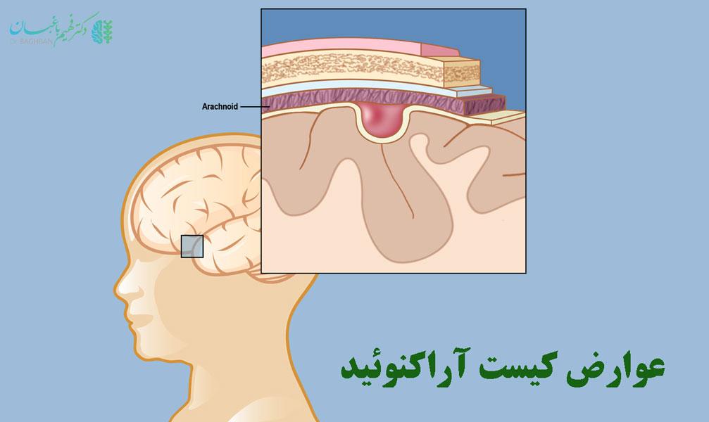 عوارض آراکنوئید مغز