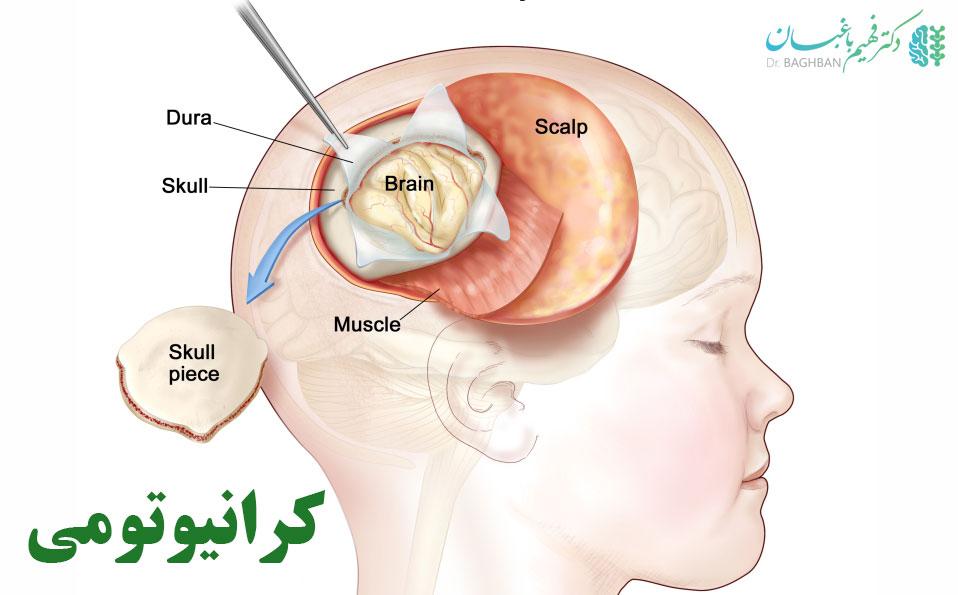 کرانیوتومی از روش های جراحی تومور مغزی