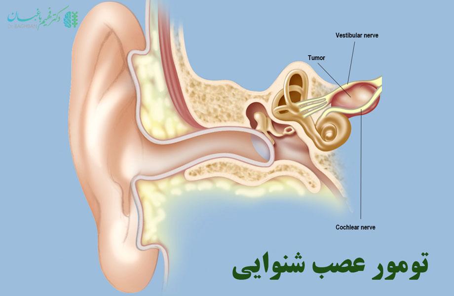 تومور عصب شنوایی