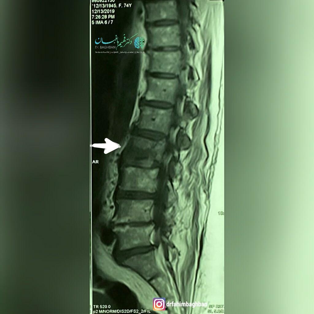 شکستگی مهره کمر در خانم 74 ساله