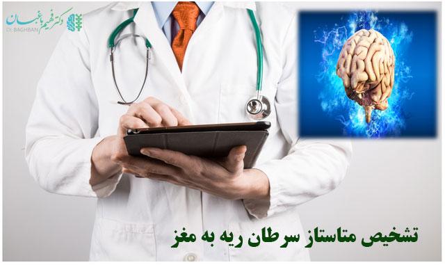 تشخیص متاستاز سرطان ریه به مغز