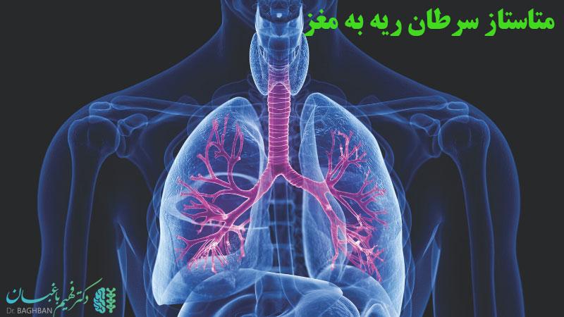 متاستاز سرطان ریه به مغز