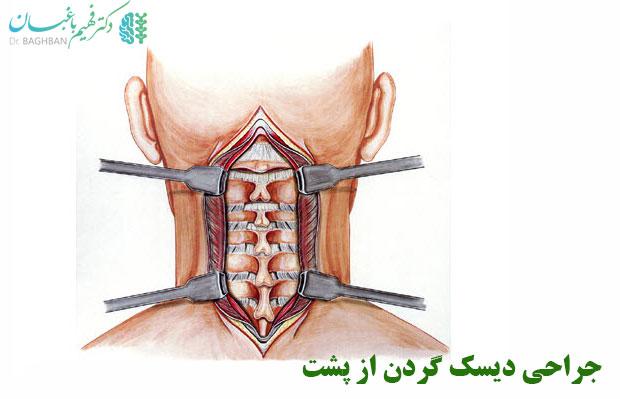 جراحی دیسک گردن از پشت