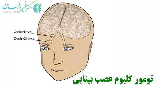 تومور گلیوم عصب بینایی