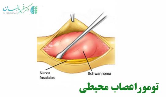 تومور اعصاب محیطی