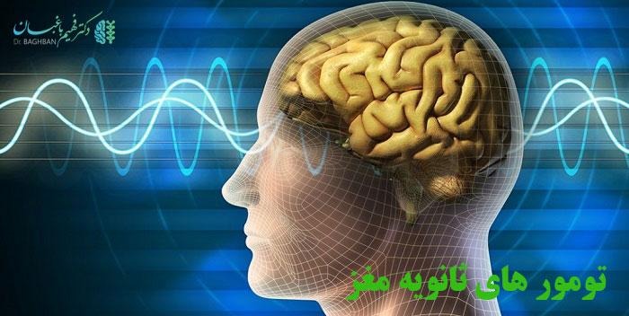 تومورهای ثانویه مغز