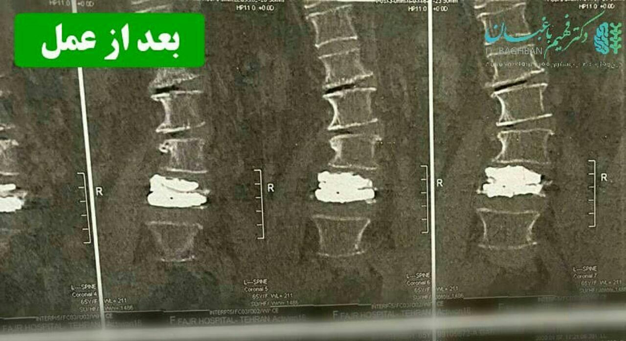 جراحی جهت كاهش فشار از ريشه های عصبی و تزريق سيمان