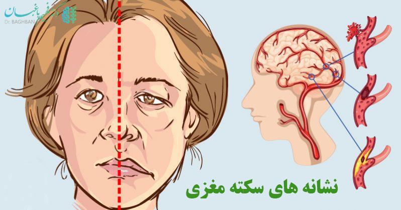 علائم و نشانه های سکته مغزی