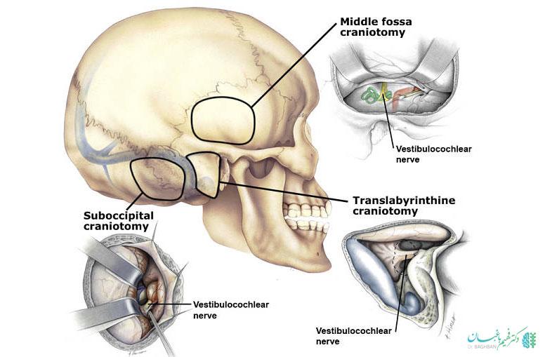 روش جراحی ترانس لابیرنتین