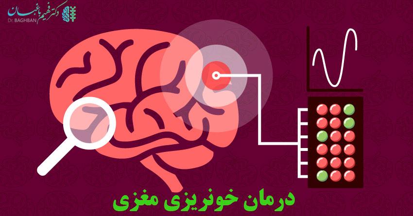 درمان خونریزی مغزی