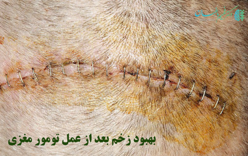 بهبود زخم ها بعد از جراحی تومور مغزی