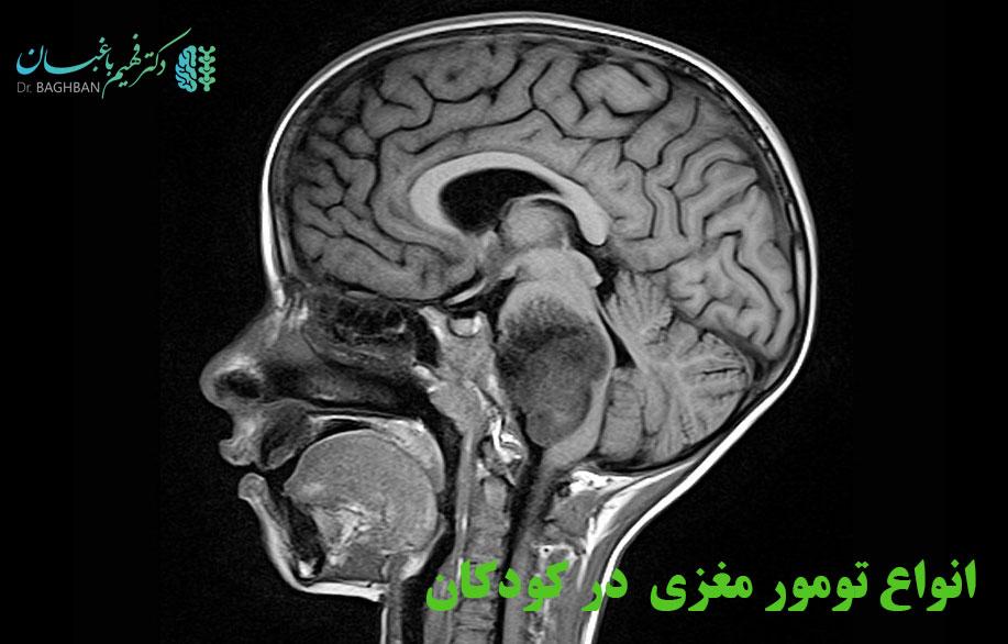 انواع تومور مغزی در کودکان