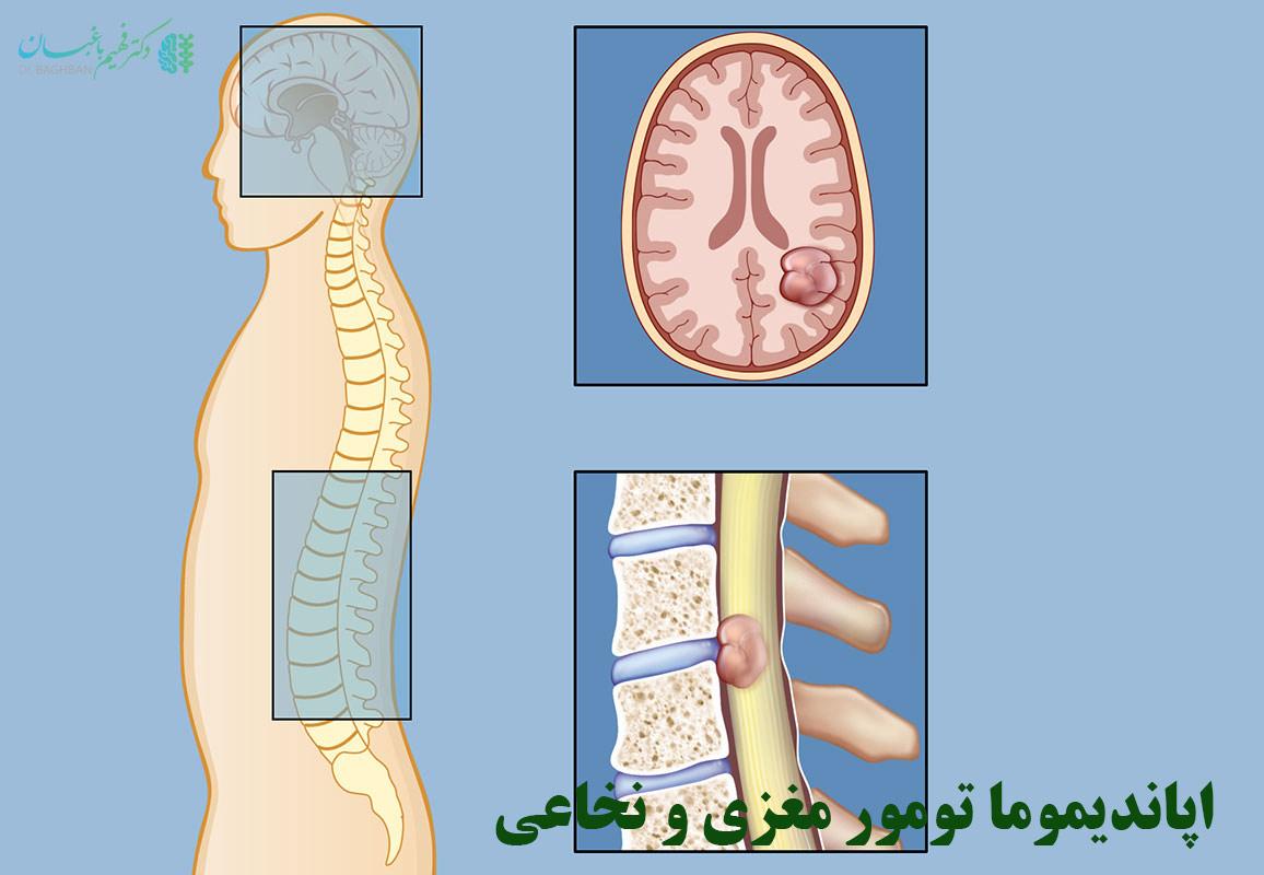 اپاندیموما تومور مغزی و نخاعی