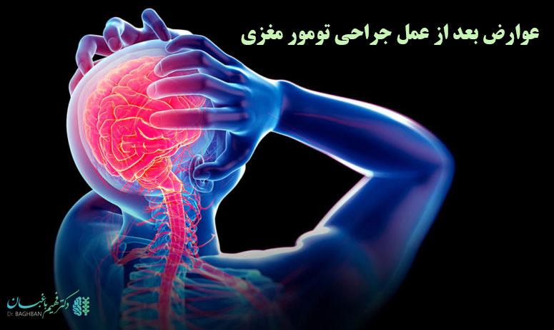 عوارض بعد از عمل جراحی تومور مغزی