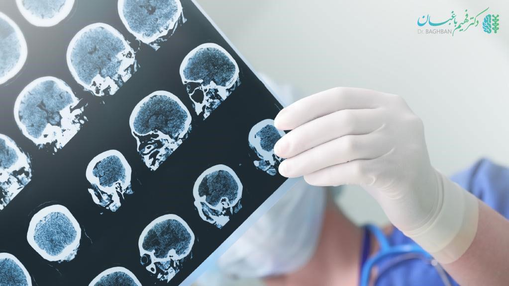 درمان سکته مغزی کودکان