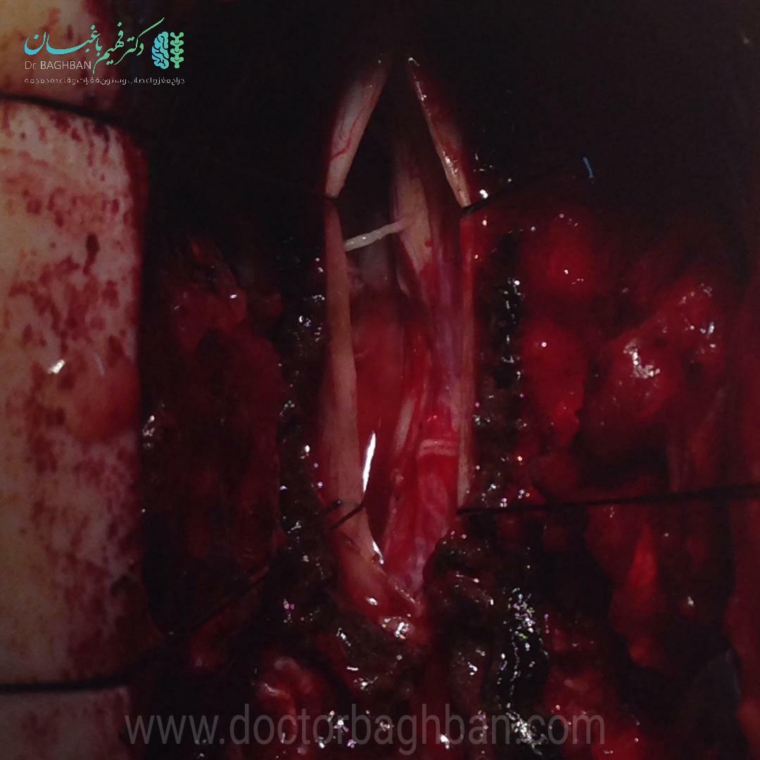 جراحی نورومانیتورینگ تومور مننژیومای نخاع