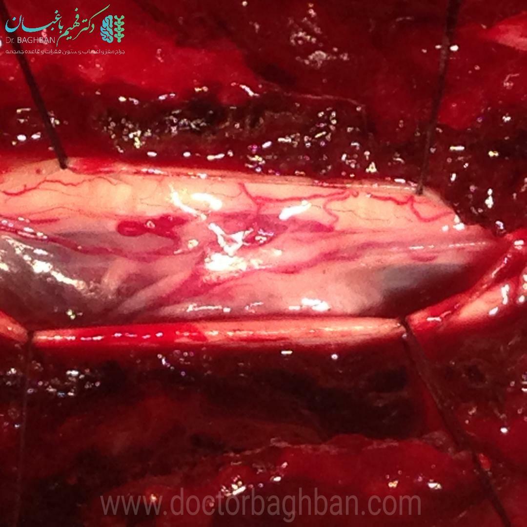 حین جراحی تومور مننژيومای نخاع