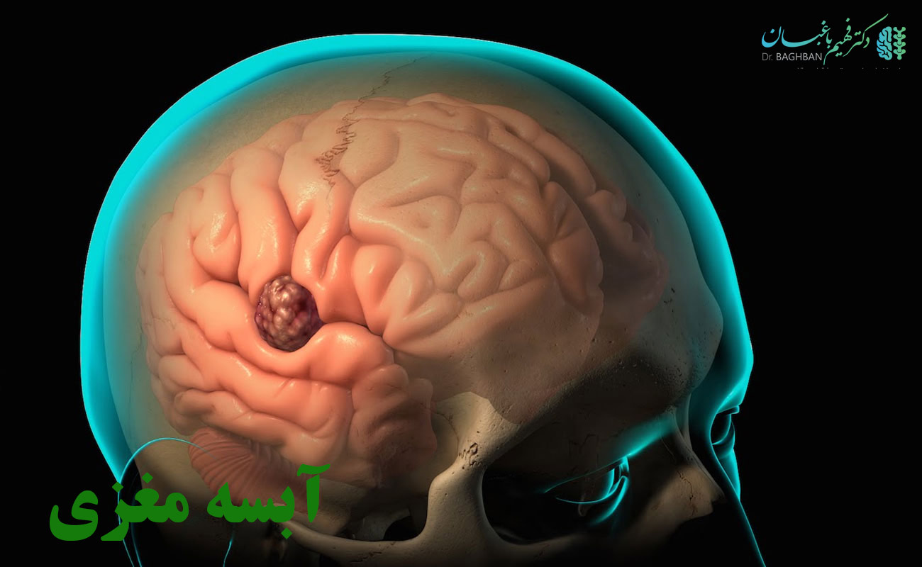 آبسه مغزی
