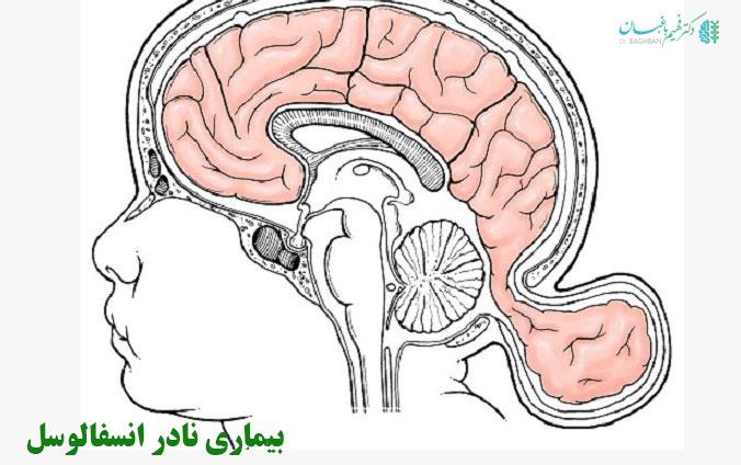 بیماری نادر انسفالوسل