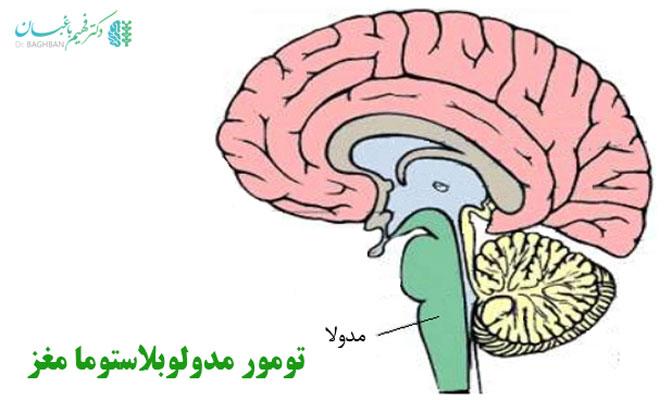 تومور مدولوبلاستوما مغز،