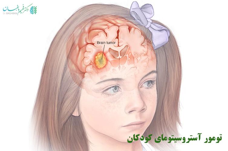 تومور آستروسیتومای کودکان