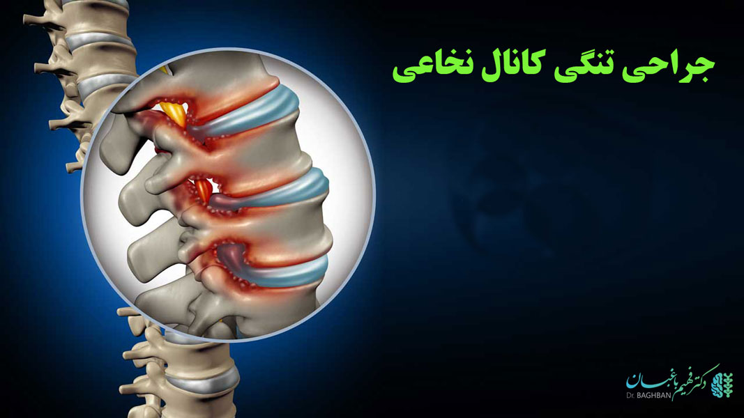 جراحی تنگی کانال نخاعی