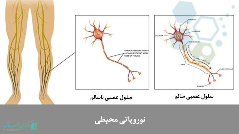 نوروپاتی عصبی-محیطی