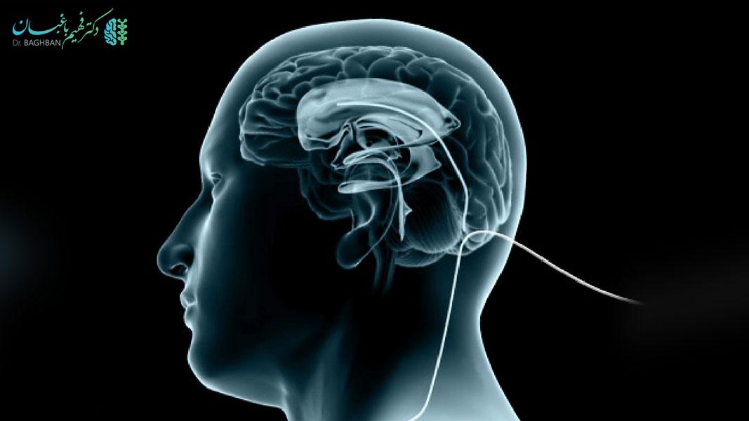 خطرات شانت مغزی