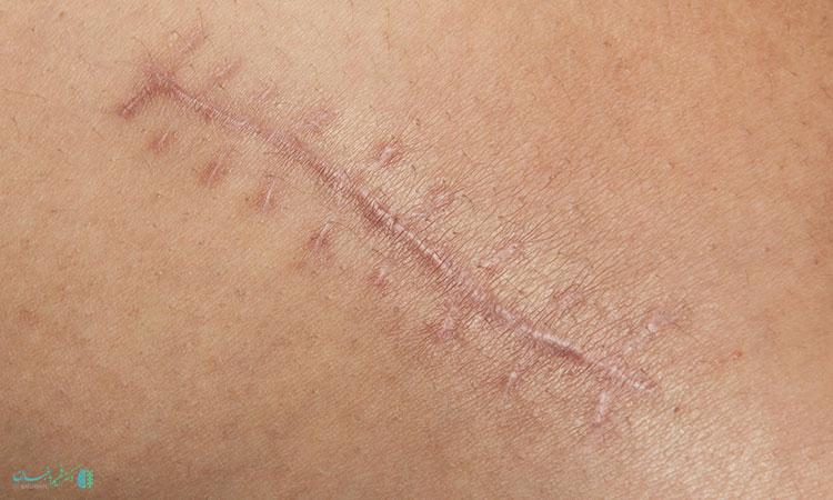 جای زخم بعد از عمل دیسک کمر
