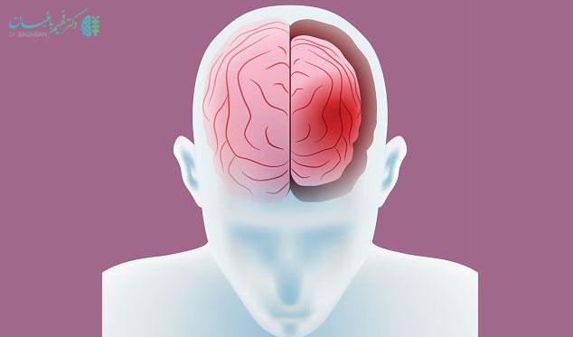 آتروفی مغز