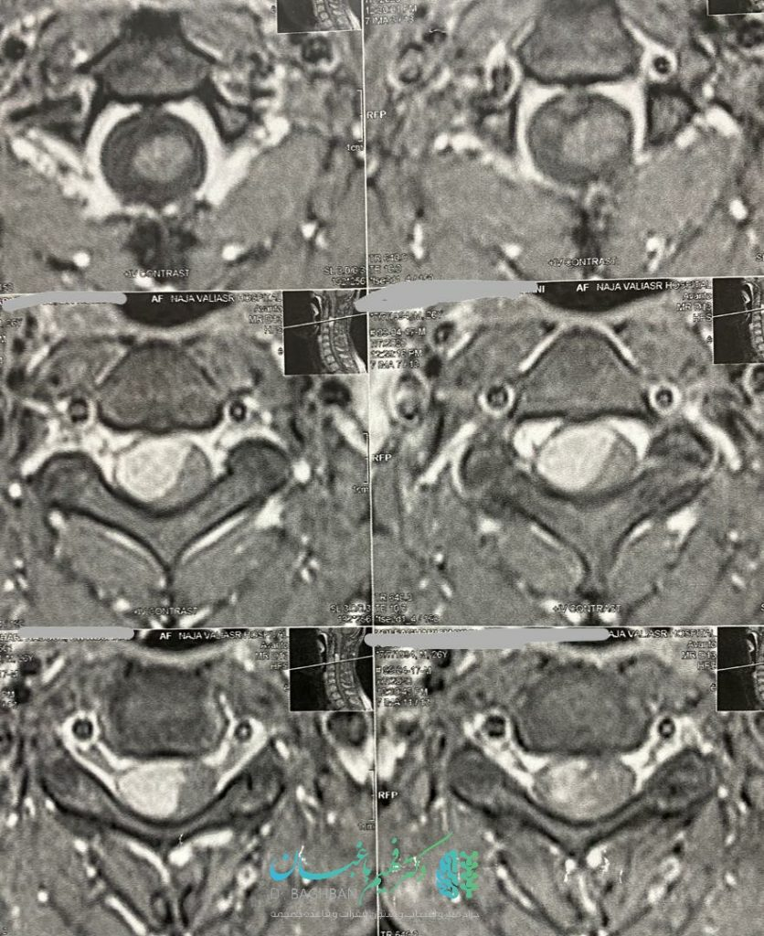 جراحی تومور مننژیومای نخاع گردن