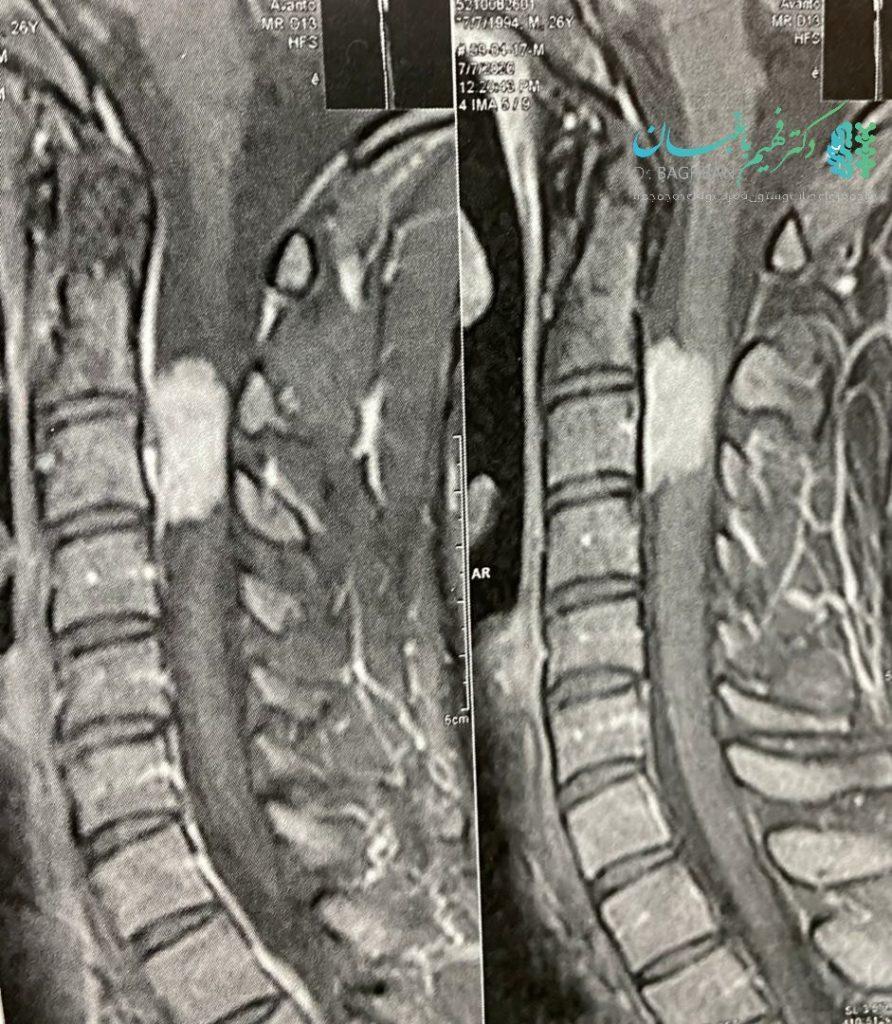 تومور مننژیومای نخاع گردن