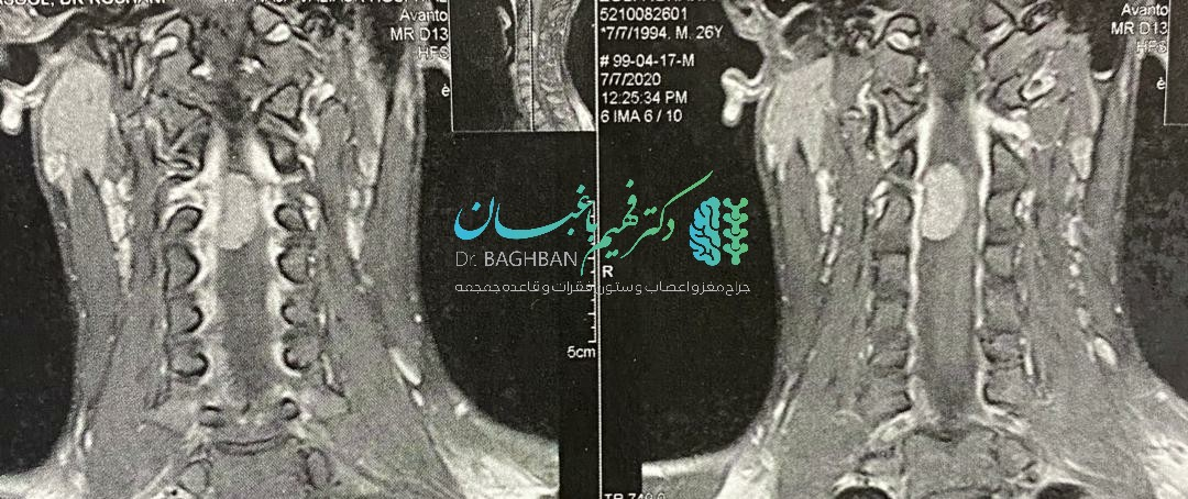 مننژیومای نخاع گردن