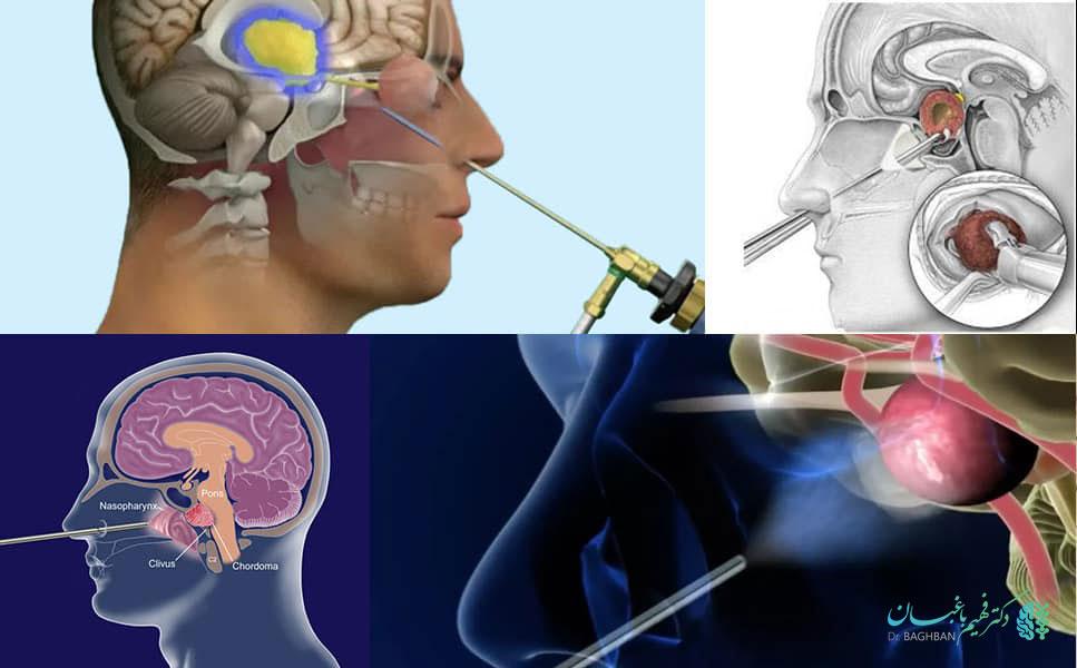 خطرات جراحی آندوسکوپی مغز