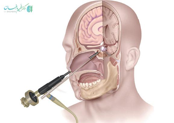 جراحی قاعده جمجمه با روش آندوسکوپی