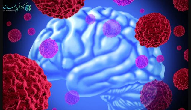 تومور آستروسیتومای پیلوکیستیک