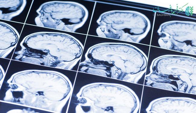 درمان آتروفی مغز