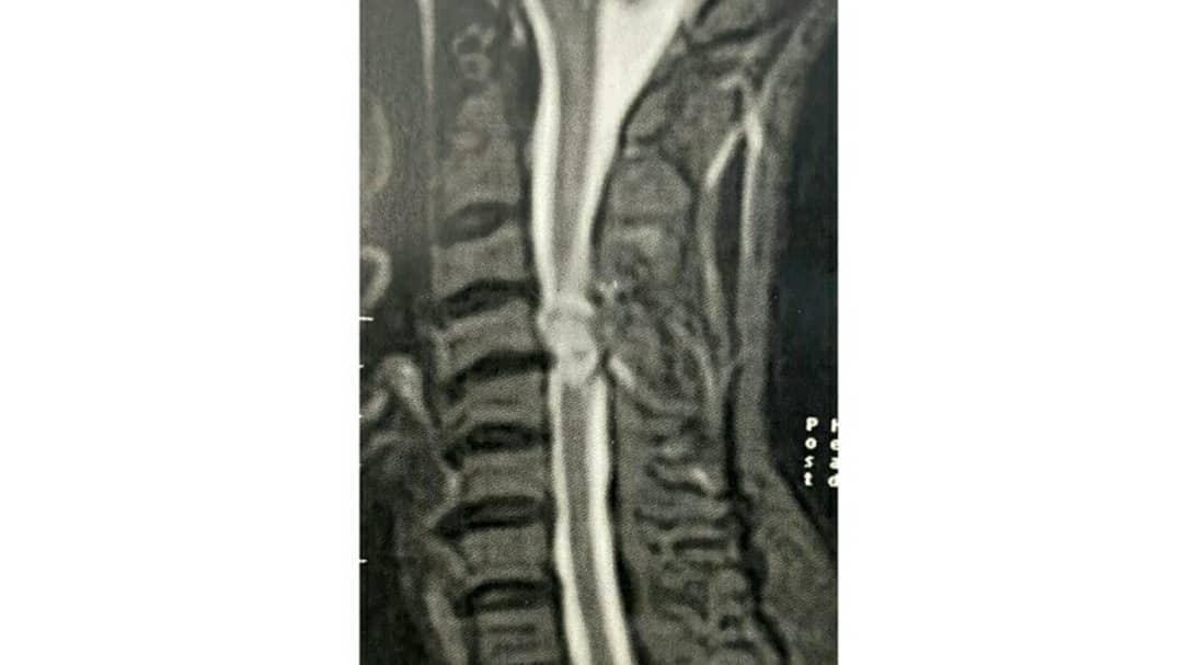 جراحی مننژیومای سرویکال