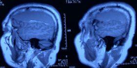 جراحی هماتوم مزمن مغزی