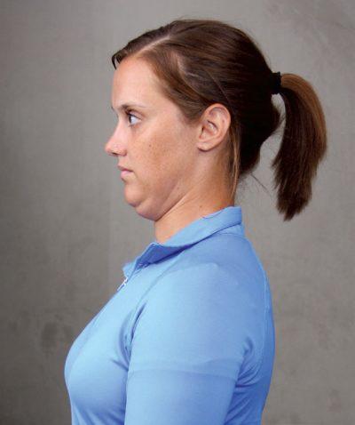 انقباض نشسته یا ایستاده گردن
