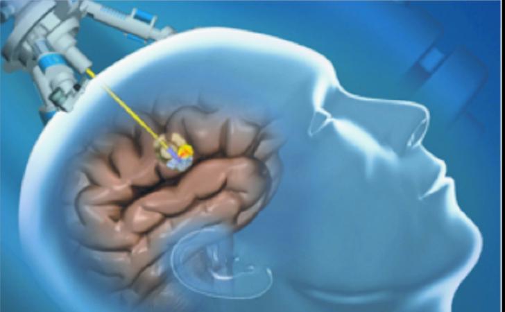 نمونه برداری از تومور مغزی