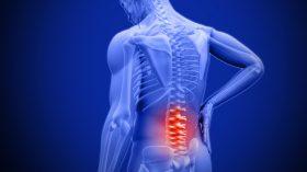 درمان عفونت دیسک کمر