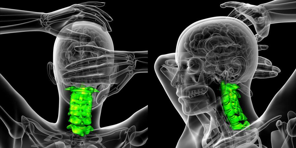 تومور نخاعی گردن